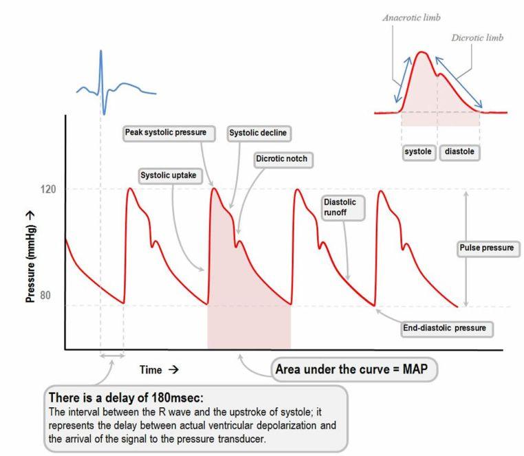 arterial pressure waveform