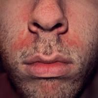 DERMITE VISAGE : la dermite (eczema) seborrheique du visage et son traitement