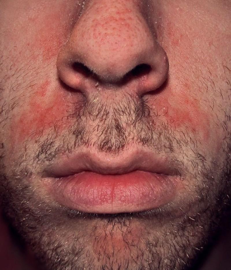 eczema seborrheique du visage