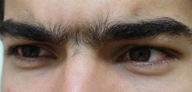 epilation entre les sourcils comment s 39 piler entre les sourcils dermatologue en ligne. Black Bedroom Furniture Sets. Home Design Ideas