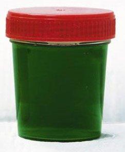 orina-azul-o-verde