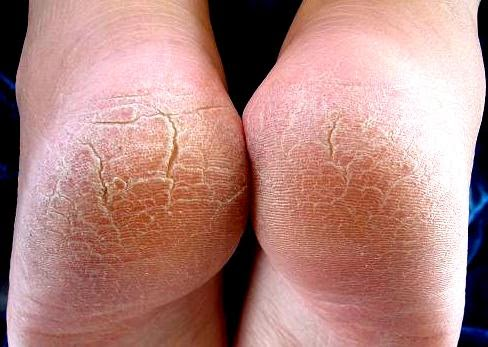 exfoliacion de los pies