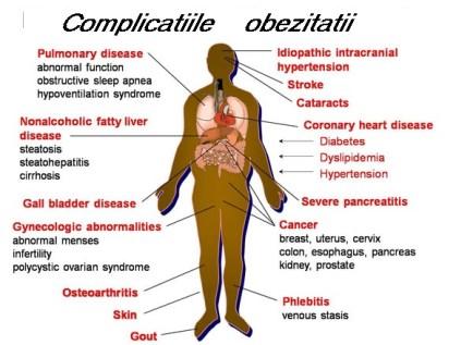 Complicatile obezitatii