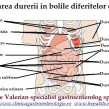 Localizarea durerii de burta in functie de organul bolnav