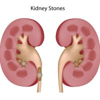 Kidney Stones Causes and Treatment Schemes
