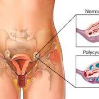 Women with Polycystic Ovary Syndrome Find Hope in Letrozole
