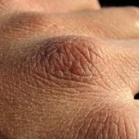 13 Cara Mengatasi Kulit Wajah Kering dan Mengelupas