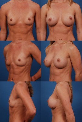 Breast Augmentation with Silicone Gel Implants - Before and After