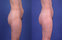 liposuction ual lipoplasty