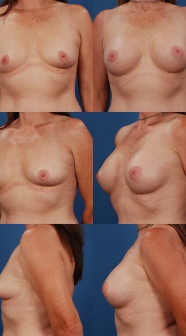 Form Stable Breast Implants Case L