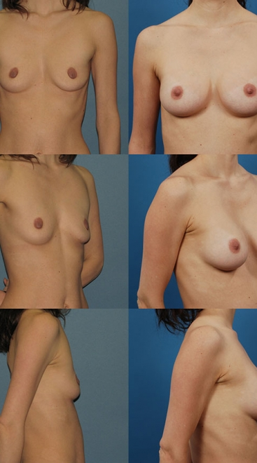Form Stable Breast Implants Case H