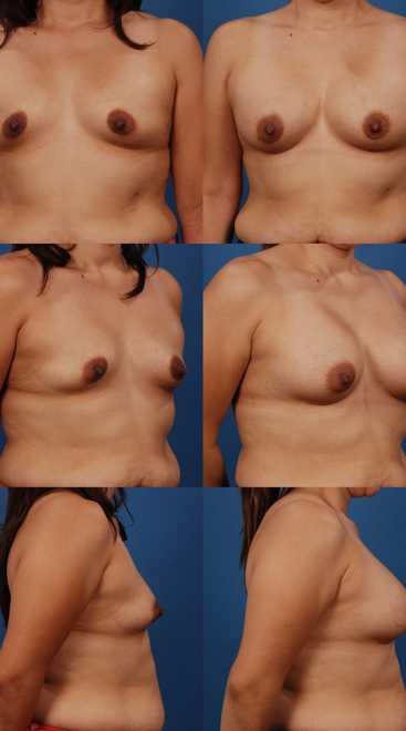 Form Stable Breast Implants Case M