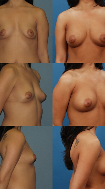 Form Stable Breast Implants Case D