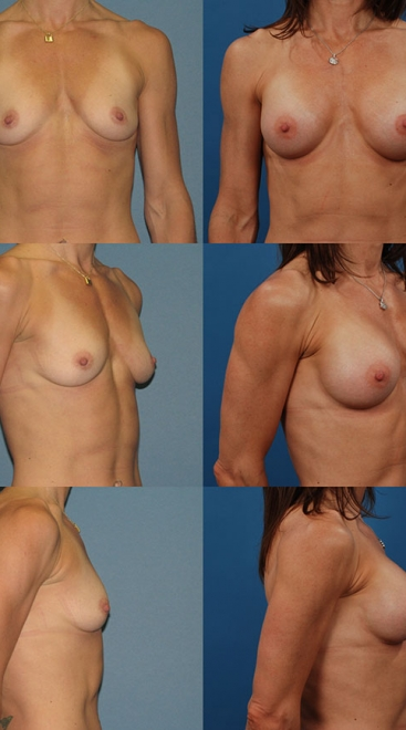 Form Stable Breast Implants Case G