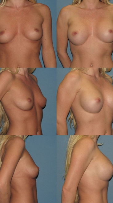 Form Stable Breast Implants Case T