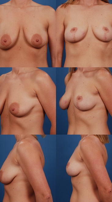 Breast Lift Case H