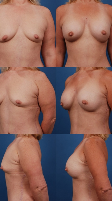 Form Stable Breast Implants Case S