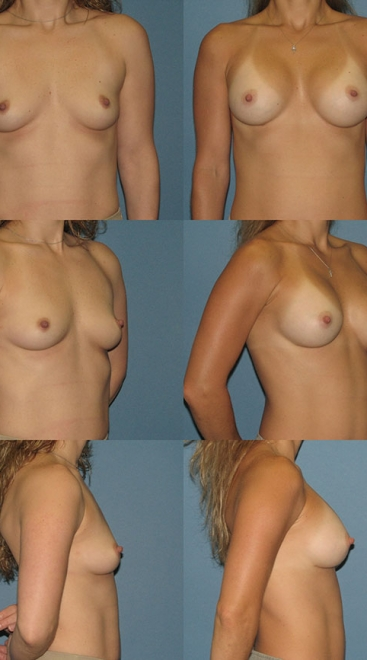 Form Stable Breast Implant Case A