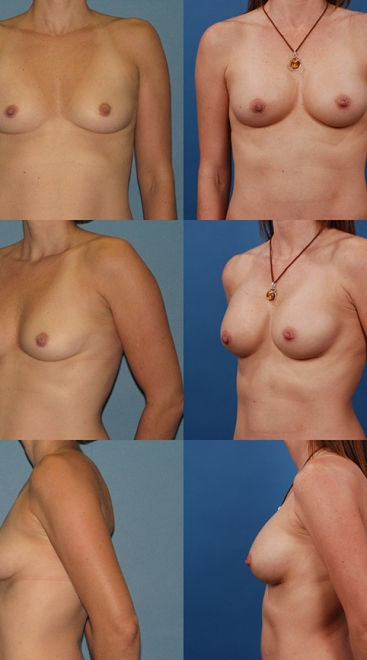 Form Stable Breast Implants Case N
