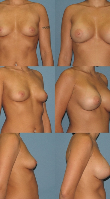 Form Stable Breast Implants Case E