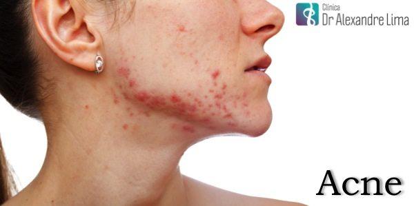 Acne-Espinha-Dr-Alexandre-Lima-Dermatologista-Belo-Horizonte-BH-Mulher