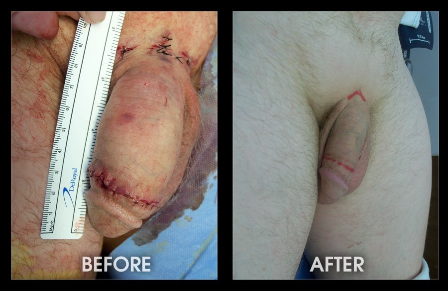 Penis Lengthening Surgery