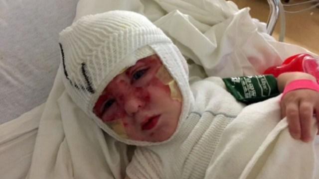girl-badly-burned_1418765273728_11229941_ver1.0_640_480-665x385