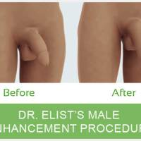 Penile Lengthening with Penile Implant Surgery