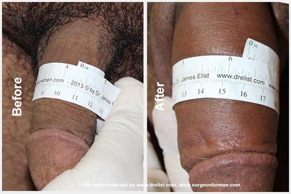 Penile Enlargement Before After Photo