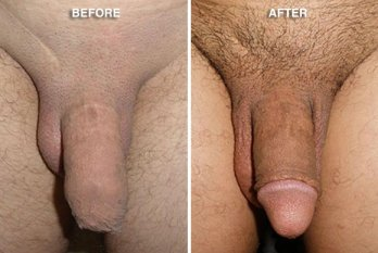 Circumcision Healing, Circumcision benefits, Circumcision Before After Photo
