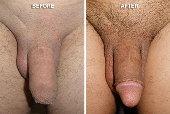 Circumcision Before After Photo