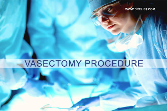 What is a Vasectomy Procedure image