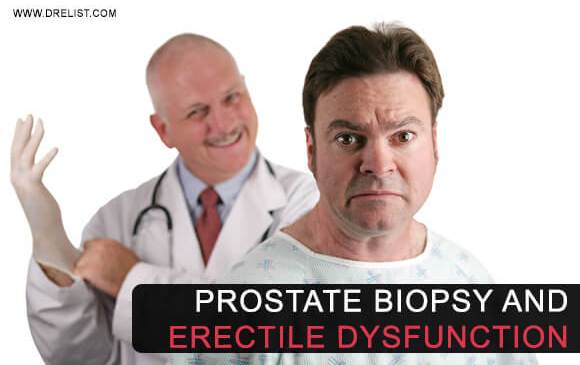 Can Prostate Biopsy Cause Erectile Dysfunction? image