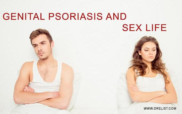 Genital Psoriasis And How It Affects Your Sex Life image