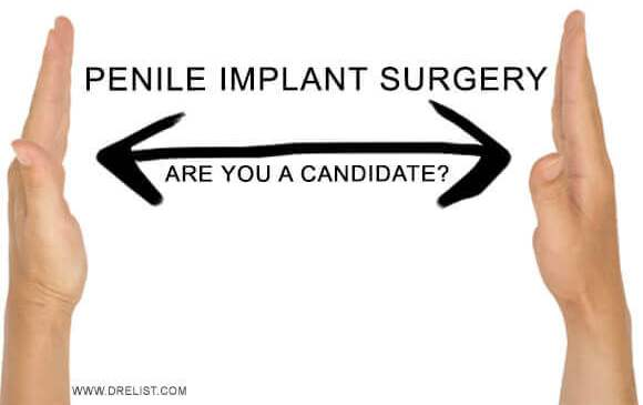 Penile Implant Surgery – Are You A Candidate? image