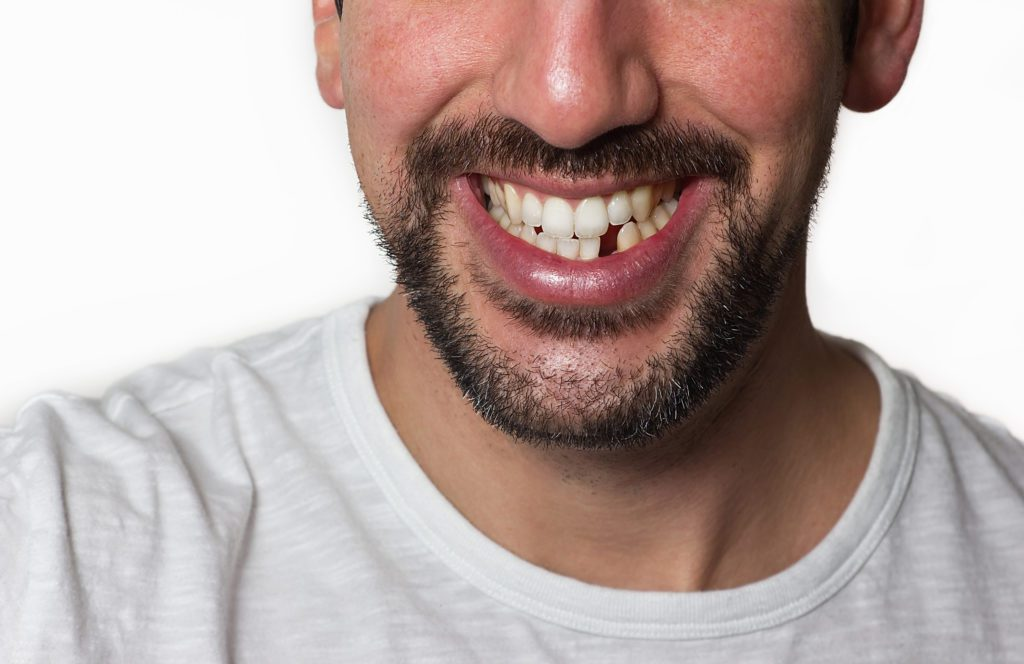Man Missing Tooth