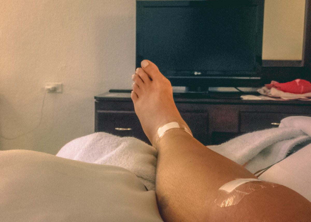 Oksana's leg after the surgery.