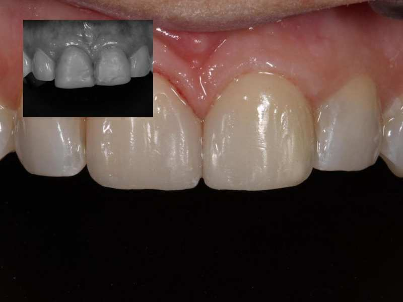 Composite Veneers for Front Teeth