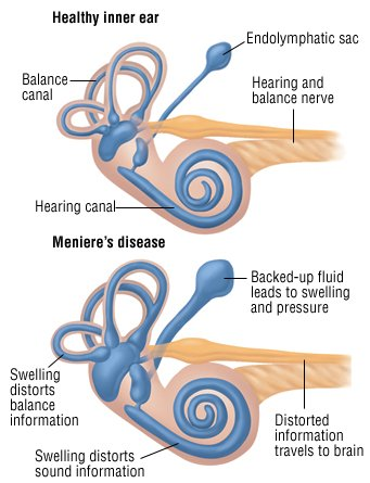 Meniere disease is syndrome of vertigo and/or hearing loss associated with tinnitus 2