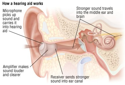 A loud, painful, ringing sound is in my ears 1