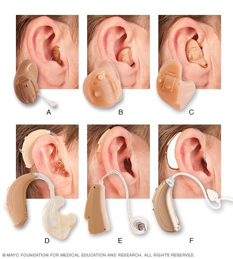 Loud noise can damage the sensitive structures within your inner ear, leading to irreversible hearing loss 2