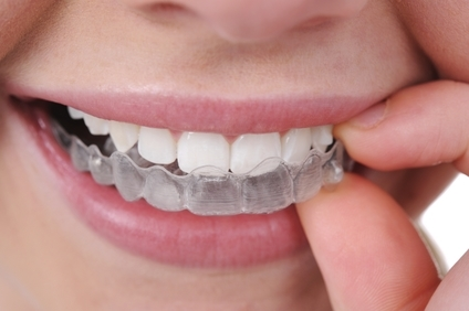 smiling person with invisalign braces