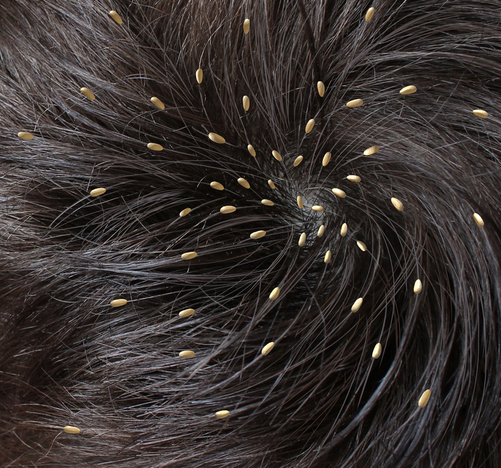 Head Lice Image Gallery  Pictures of Nits Eggs amp Adult