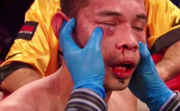 Donaire Darchinyan on November 9th in triple header on HBO