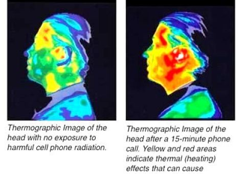 mobile-radiation-brain-cancer