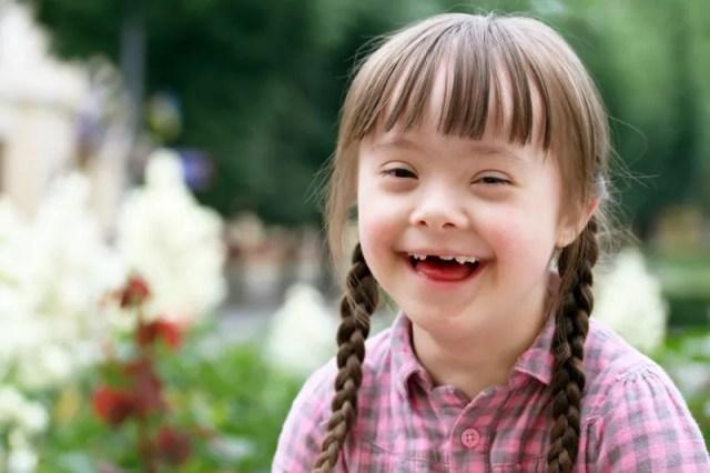 dentición-niños-sindrome-down