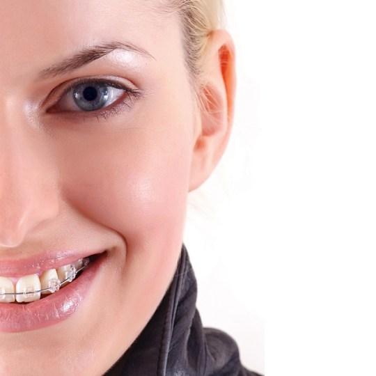 http://i1.wp.com/www.elitedental.cl/home/wp-content/uploads/2016/05/ortodoncia01.jpg?resize=540%2C540