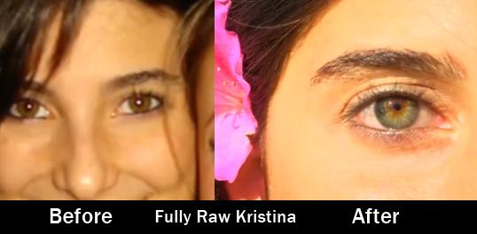 fully-raw-kristina-before-after-iridology-eyes-raw-vegan