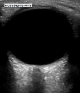 eye in screen