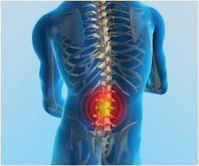 EM Cases: Lower Back Pain Emergencies